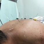 日本工学院専門学校へ。鍼治療と身体の歪み矯正なり。